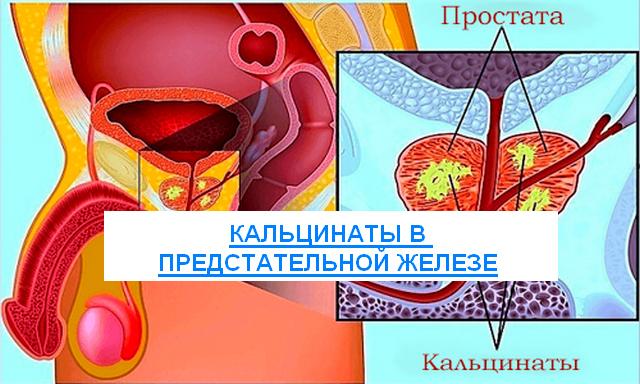 Дгпж кальцинаты в предстательной железе