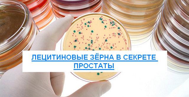 лецитиновые зерна в секрете простаты