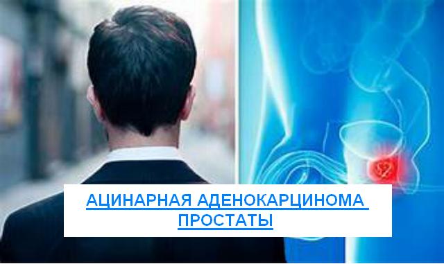 Ацинарная аденокарцинома предстательной железы разных степеней
