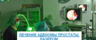 лечение аденомы простаты лазером