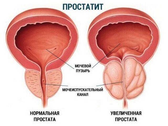 простата увеличена как лечить